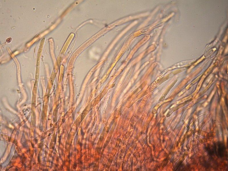 Leucoagaricus-crystallifer-pileipellis-1_400.jpg