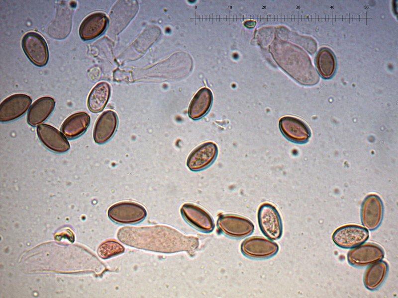 Psilocybe-serbica-spore-08_1000.jpg