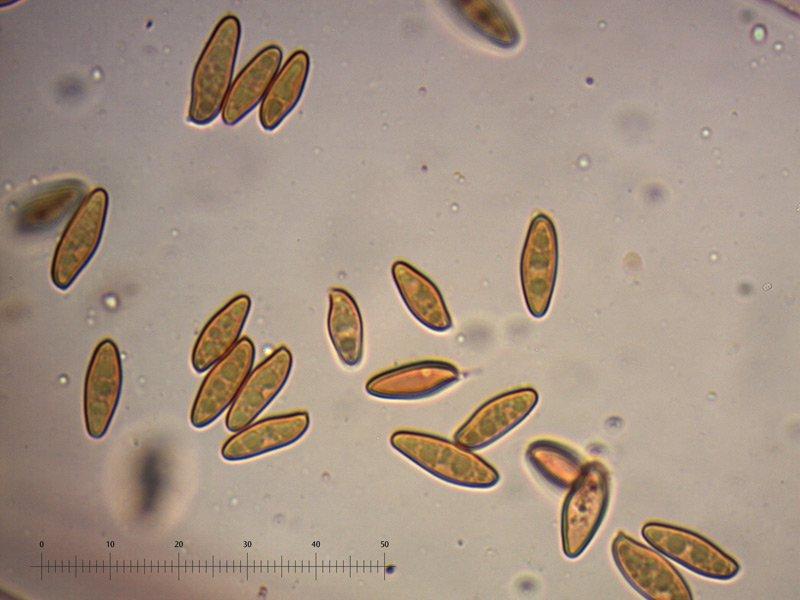 Xerocomellus-cisalpinus-spore-05_1000.jpg