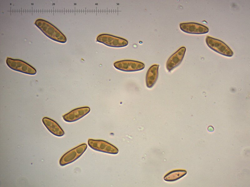 Xerocomellus-cisalpinus-spore-08_1000.jpg