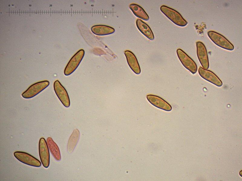 Xerocomellus-cisalpinus-spore-11_1000.jpg