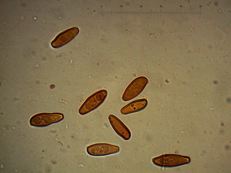 Xerocomus-porosporus-spore-11_1000.jpg