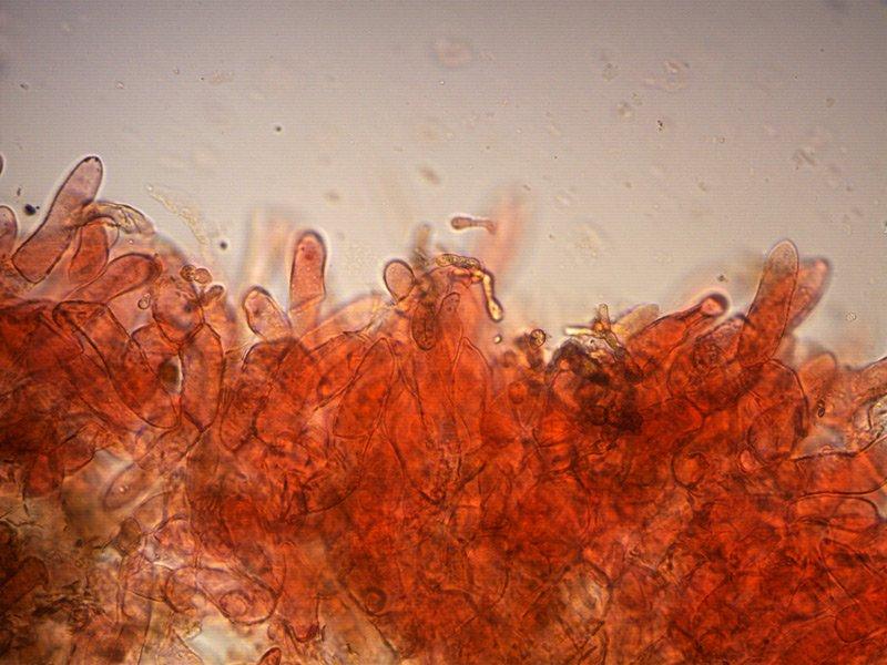 Xerocomellus cisalpinus-pileipellis-04_400.jpg
