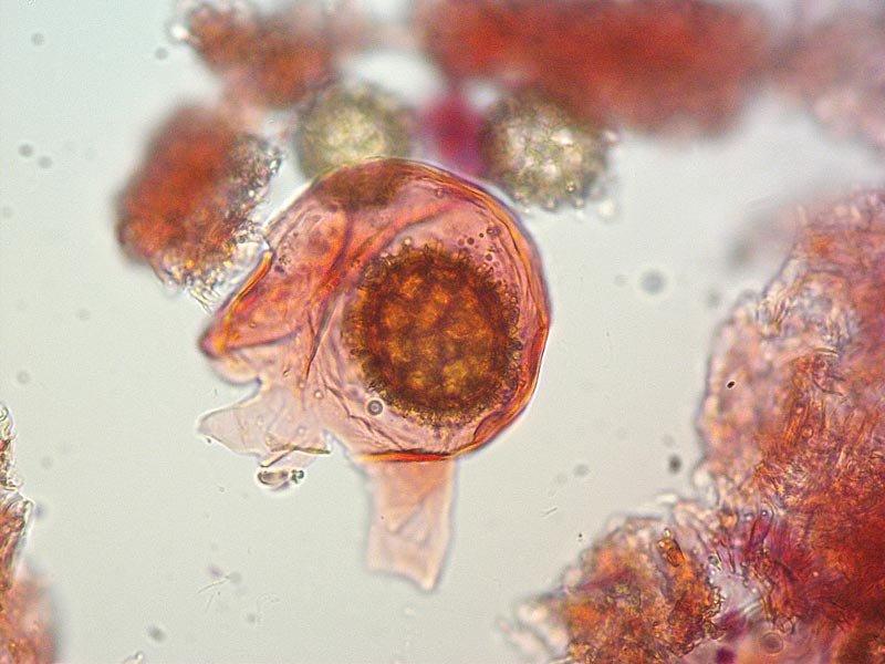 Tuber borchii 28 Spore 400x.jpg
