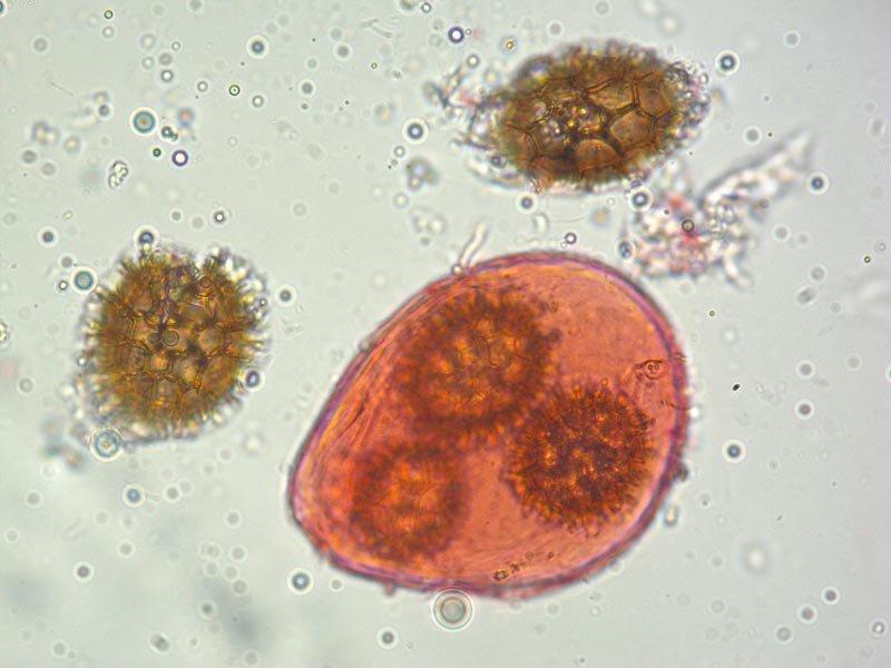 Tuber borchii 43 Spore 400x.jpg