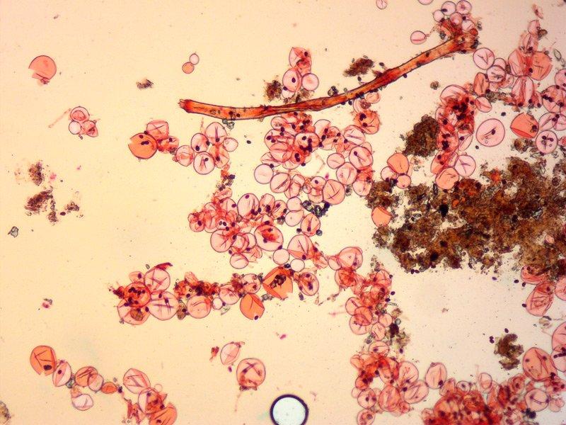 Coprinellus micaceus 06 Velo cuticola RC 100x.jpg