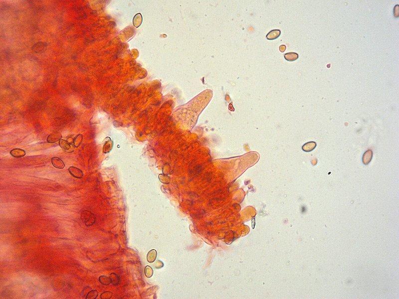 Agrocybe praecox 05-6 Cheilo RC 400x.jpg