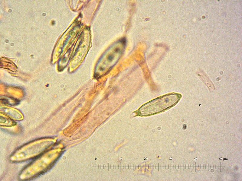 Hysterangium stoloniferum 35 Basidi Spore 1000x RC_u.jpg