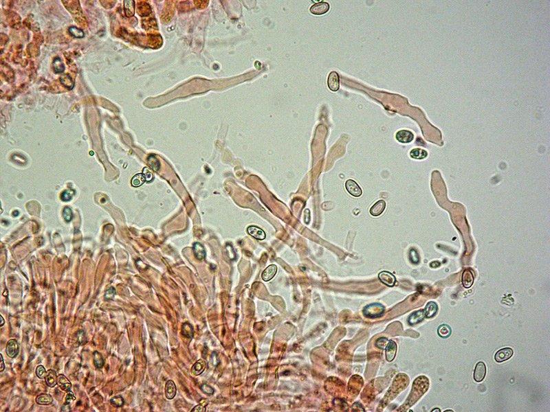 Hemipholiota oedipus 08 Cheilo 400x RC.jpg