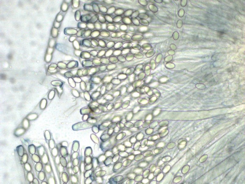 Peziza micropus 18 Aschi spore Melzer 400x.jpg