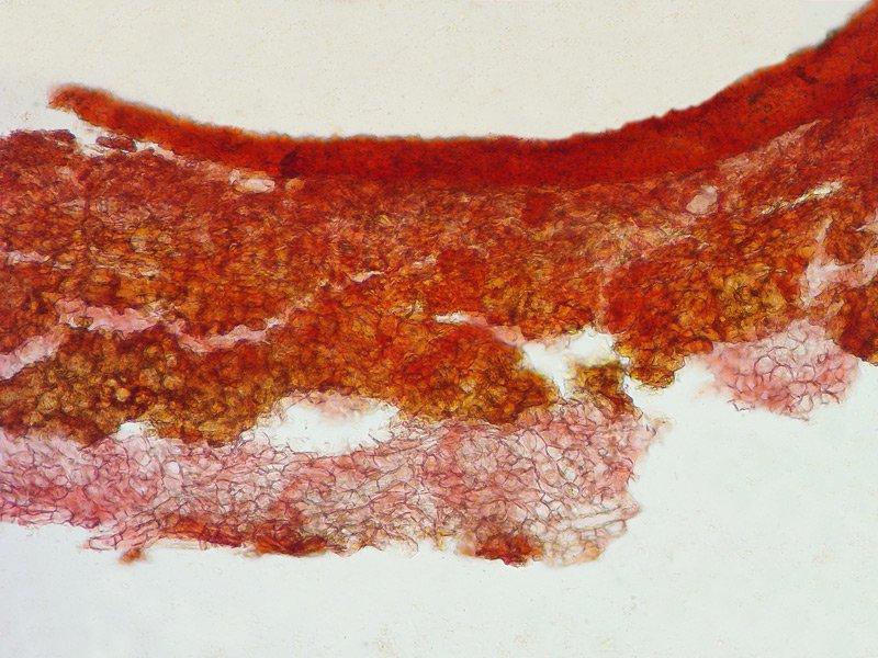 Hysterangium stoloniferum 44 Lorenzo Rossi - Peridio RC 100x.jpg