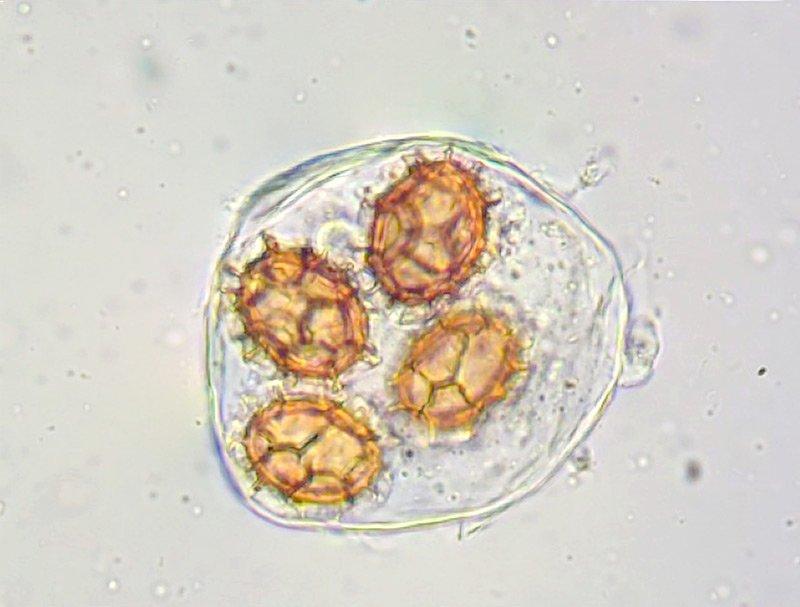 Tuber-excavatum-46-7-Spore-400x-L4.jpg