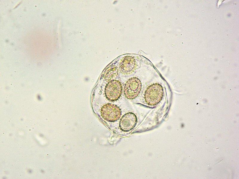 Tuber panniferum 56 Spore L4 400x.jpg