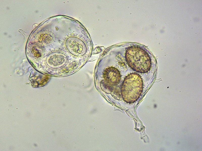 Tuber panniferum 57-60 Spore L4 400x.jpg