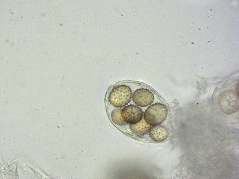 Tuber panniferum 76-9 Spore L4 400x.jpg