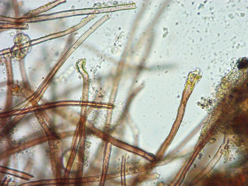 Tuber panniferum 33 Peli esterni peridio L4 400x.jpg