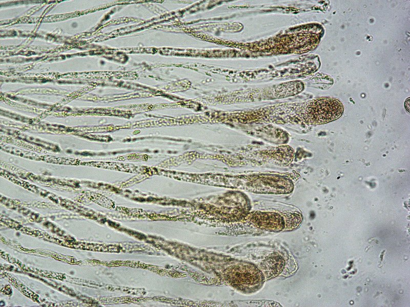 Adelphella babingtonii 15 Aschi spore parafisi Melzer 400x.jpg