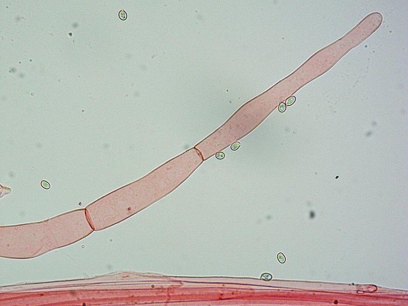 Volvariella hypopithys 165 TL190910-01 Caulo RC 400x.jpg