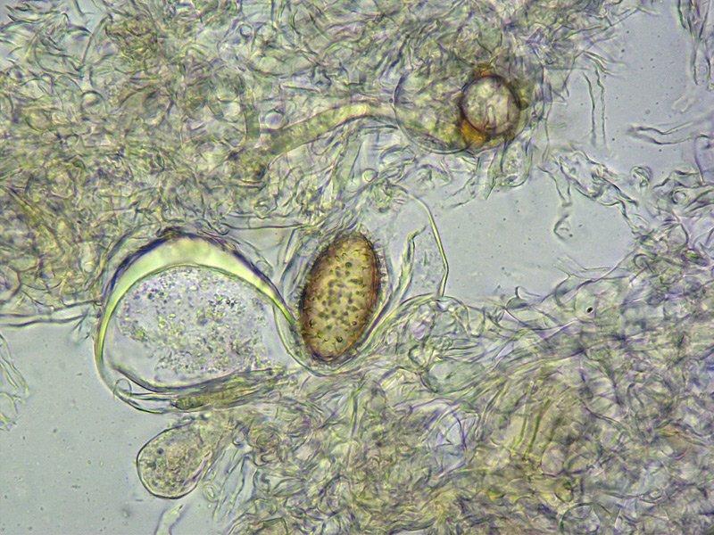 Tuber brumale 14-5 Spore 400x L4.jpg