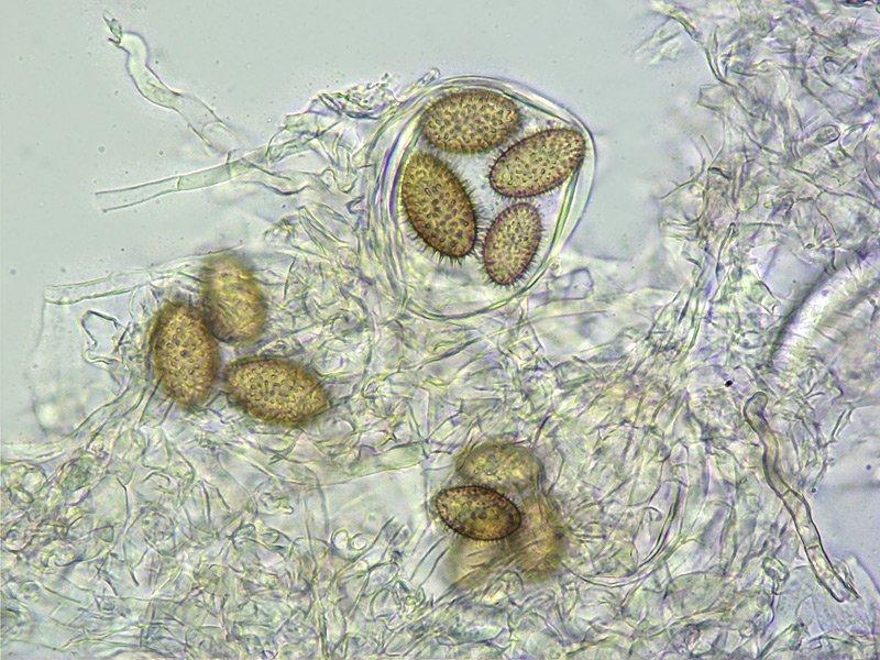 Tuber brumale 12-3 Spore 400x L4.jpg