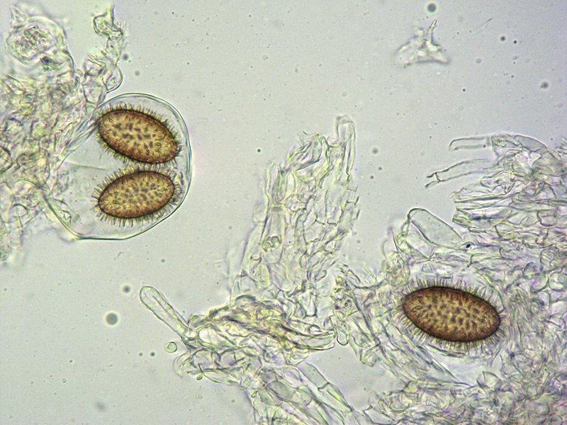 Tuber brumale 28-9 Spore 400x L4.jpg