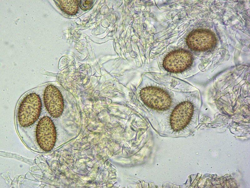 Tuber brumale 20-1 Spore 400x L4.jpg