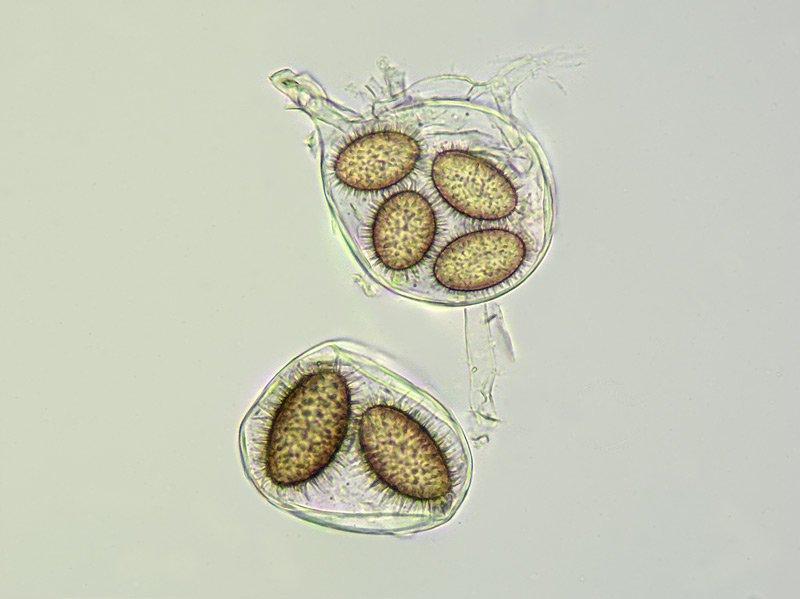 Tuber brumale 30-1 Spore 400x L4.jpg