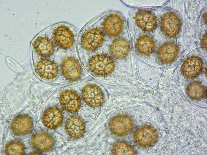 Tuber mesentericum 31 Aschi 3-4-5sp 400x L4.jpg