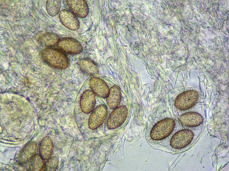 Tuber brumale 16-9 Spore 400x L4.jpg