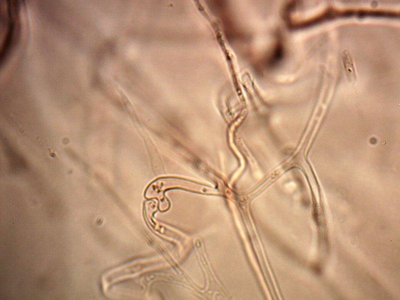 Exidia-glandulosa-ife-gaf-2_1000.jpg