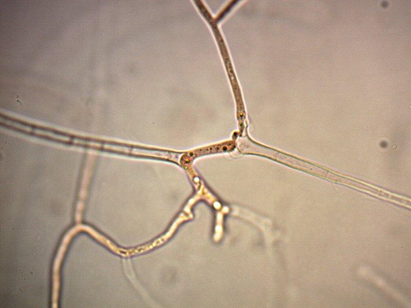Exidia-glandulosa-ife-gaf-4_1000.jpg