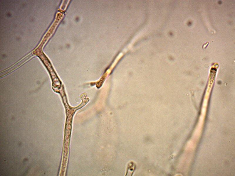 Exidia-glandulosa-ife-gaf-6_1000.jpg