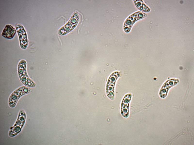 Exidia-glandulosa-spore-01_1000.jpg