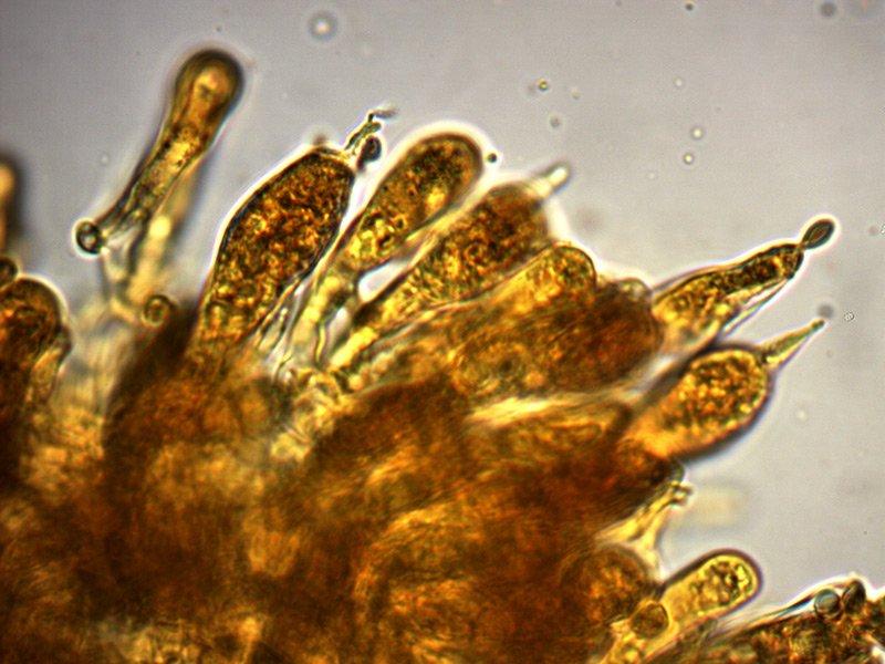 Russula-faginea-macrocistidi-1_1000X.jpg