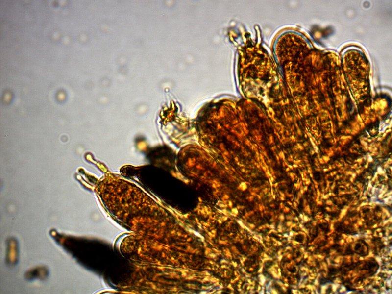Russula-laurocerasi-macrocistidi-2_1000x.jpg
