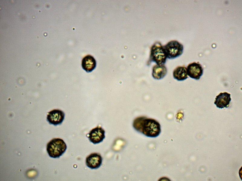 Russula-sp-spore-1_1000x.jpg