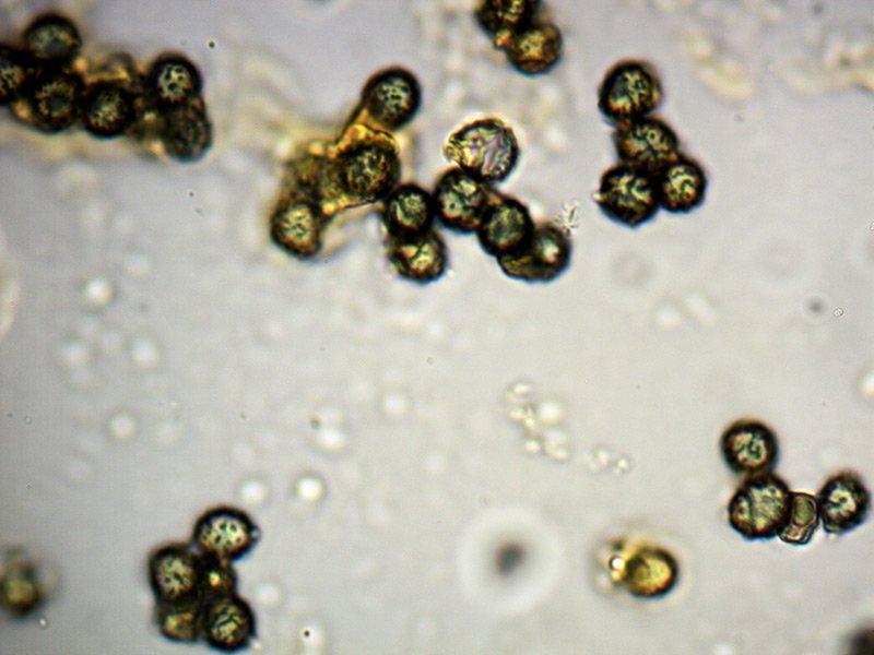 Russula-sp-spore-4_1000x.jpg