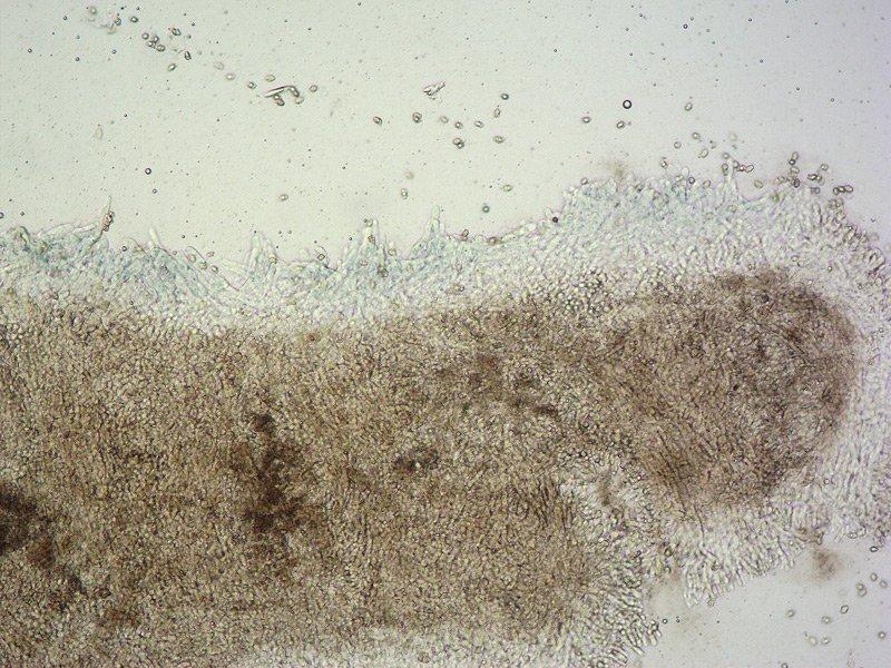 Entoloma serrulatum D TL191121-11 12 Cheilo 100x L4.jpg