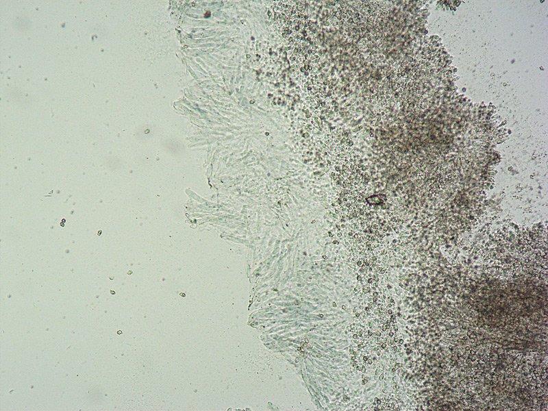 Entoloma serrulatum E TL191121-12 15 Cheilo 100x L4.jpg