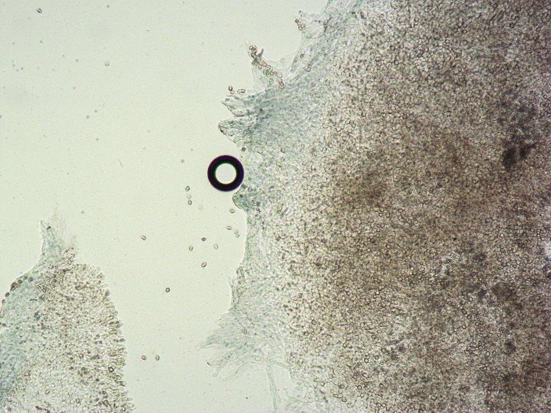 Entoloma serrulatum E TL191121-12 14 Cheilo 100x L4.jpg