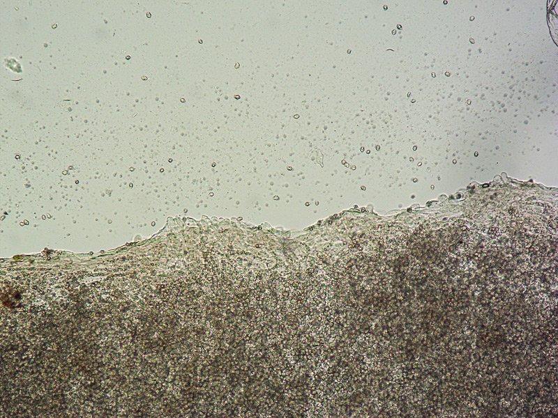 Entoloma mediterraneense G TL191121-14 15 Cheilo 100x L4.jpg