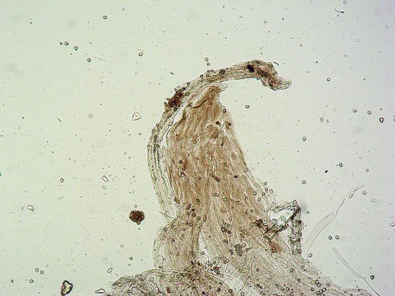 Entoloma mediterraneense G TL191121-14 08 Pileipellis 100x L4.jpg