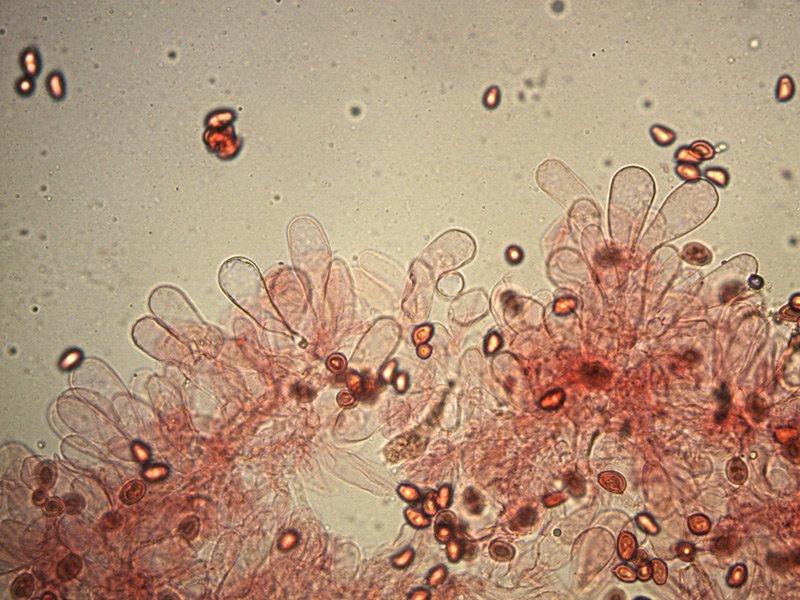 Chlorophyllum-brunneum-cheilo-rc-37_400x.jpg