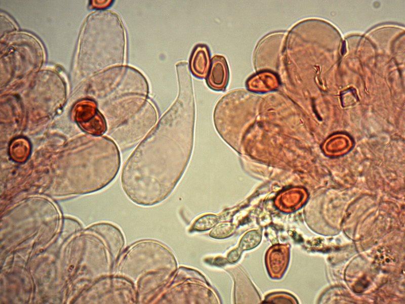 Chlorophyllum-brunneum-cheilo-rc-45_1000x.jpg