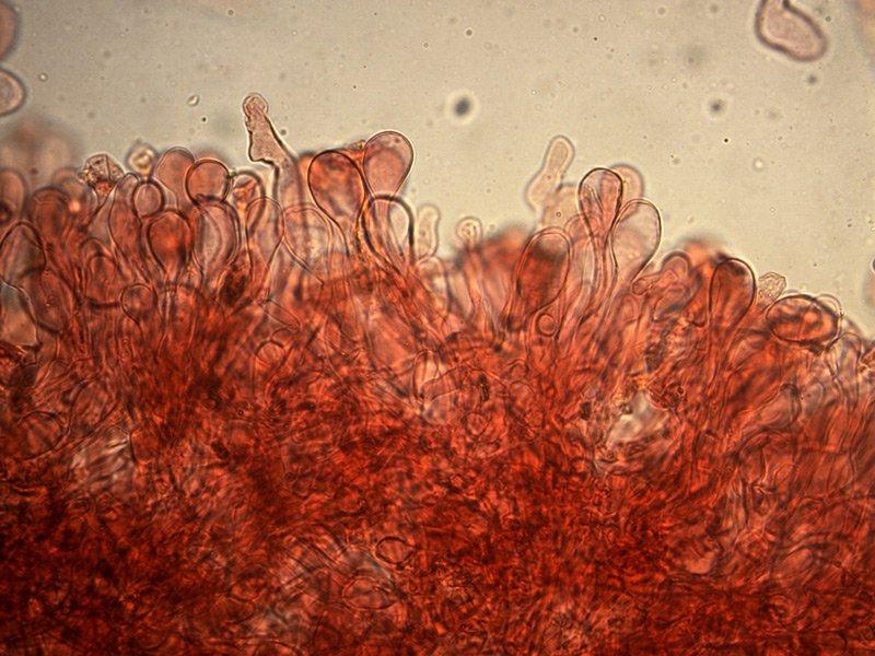 Chlorophyllum-brunneum-pileipellis-rc-06_400x.jpg