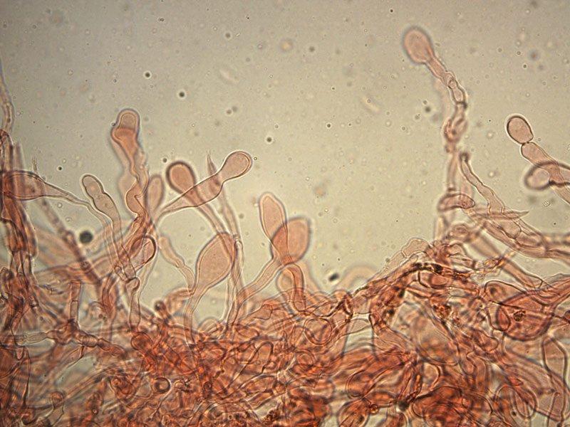 Chlorophyllum-brunneum-pileipellis-rc-13b_400x.jpg