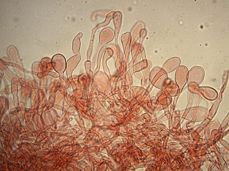 Chlorophyllum-brunneum-pileipellis-rc-14_400x.jpg