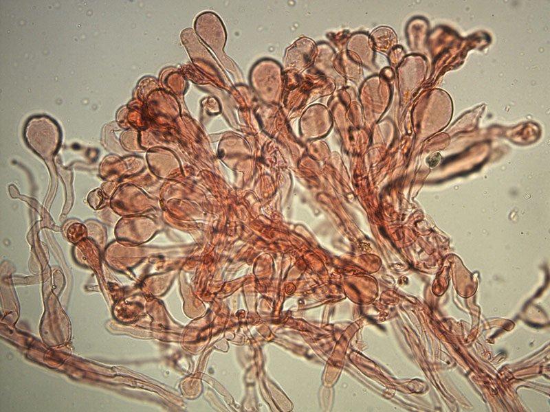 Chlorophyllum-brunneum-pileipellis-rc-15_400x.jpg