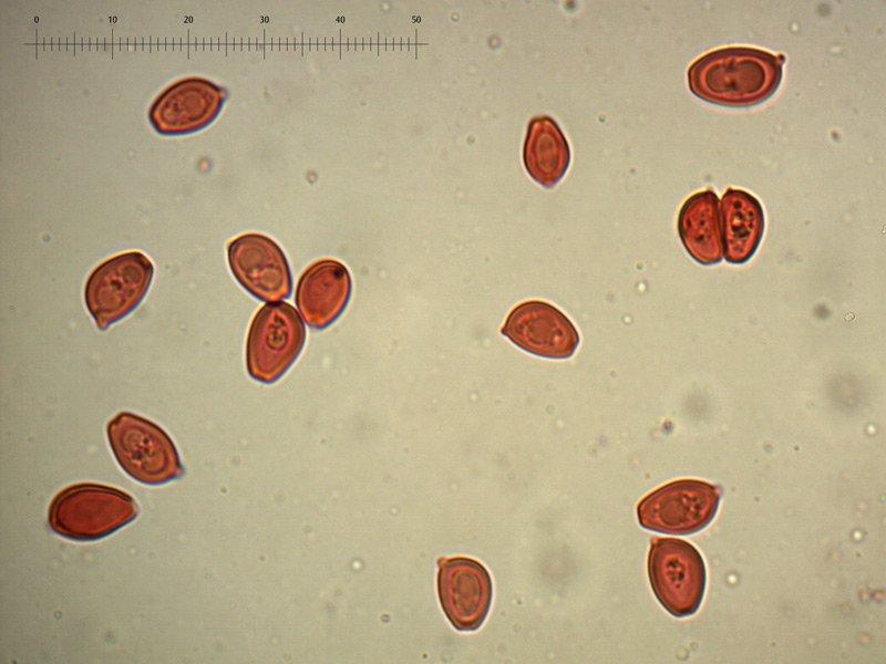 Chlorophyllum-brunneum-spore-rc-31_1000x.jpg