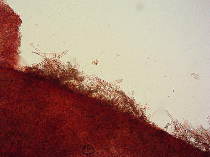Lepiota-subincarnata-TL191207-02-12-Pileipellis-100x-RC.jpg